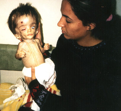 http://merryabla64.files.wordpress.com/2009/01/iraqi-child-victim-of-depleted-uranium.jpg